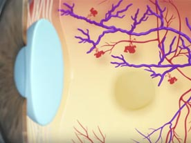 patient education, video, dry amd
