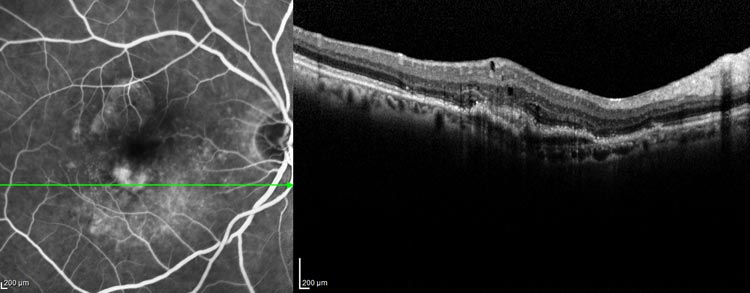 diabetic, fluorescein, angiography, wet amd
