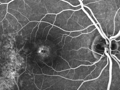 macular hole, fluorescein, angiography, dye