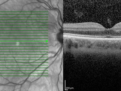 optical, coherence, tomography, oct